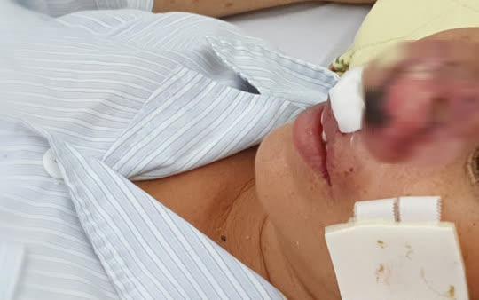 Người đàn ông sốt, ho, khó thở suốt 2 tháng nhiễm vi khuẩn ăn thịt người - 2