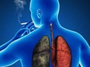 Tin tức sức khỏe - VTV1, HTV7 cảnh báo: Đờm, ho, khó thở - kẻ huỷ diệt mới của thế giới không được chủ quan