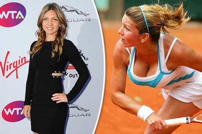 """Người đẹp tennis từng khổ sở vì """"vòng 1"""" khủng, tiết lộ lý do phẫu thuật - 1"""