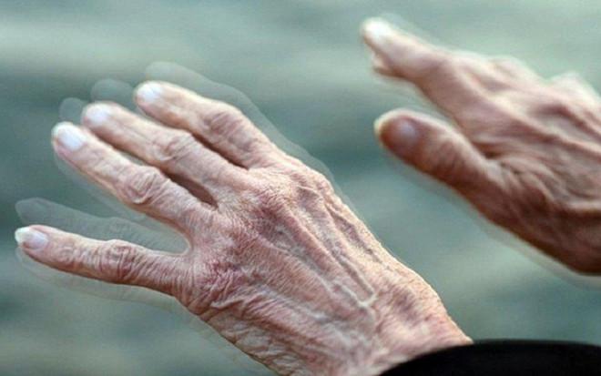 Thấy cơ thể có những thay đổi này cẩn thận mắc Parkinson mà không biết - 1