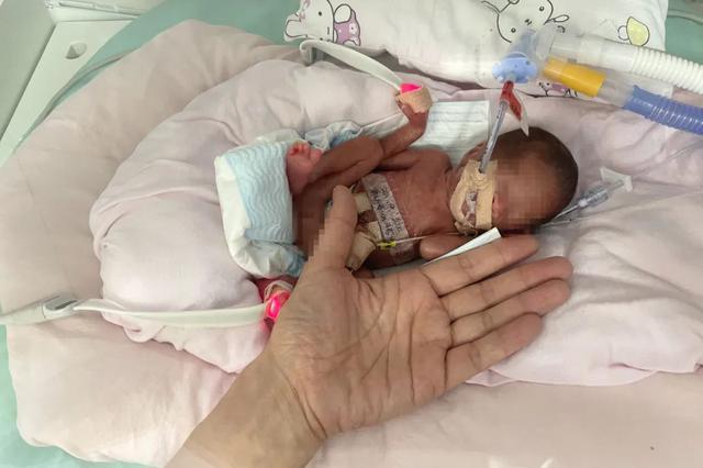 Kỳ tích sống sót của em bé sinh non nặng vỏn vẹn 450 gam, bé như bàn tay - 1
