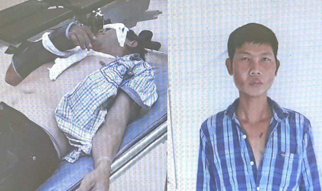 Sự thật vụ 2 người bị nhóm lạ mặt đánh đập dã man giữa khuya - 1