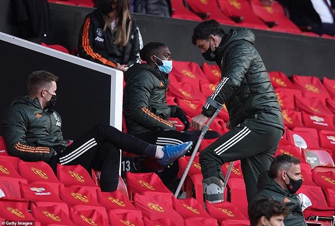 MU 2 trận thua 6 bàn, Maguire chấn thương nguy cơ lỡ chung kết Europa League - 1