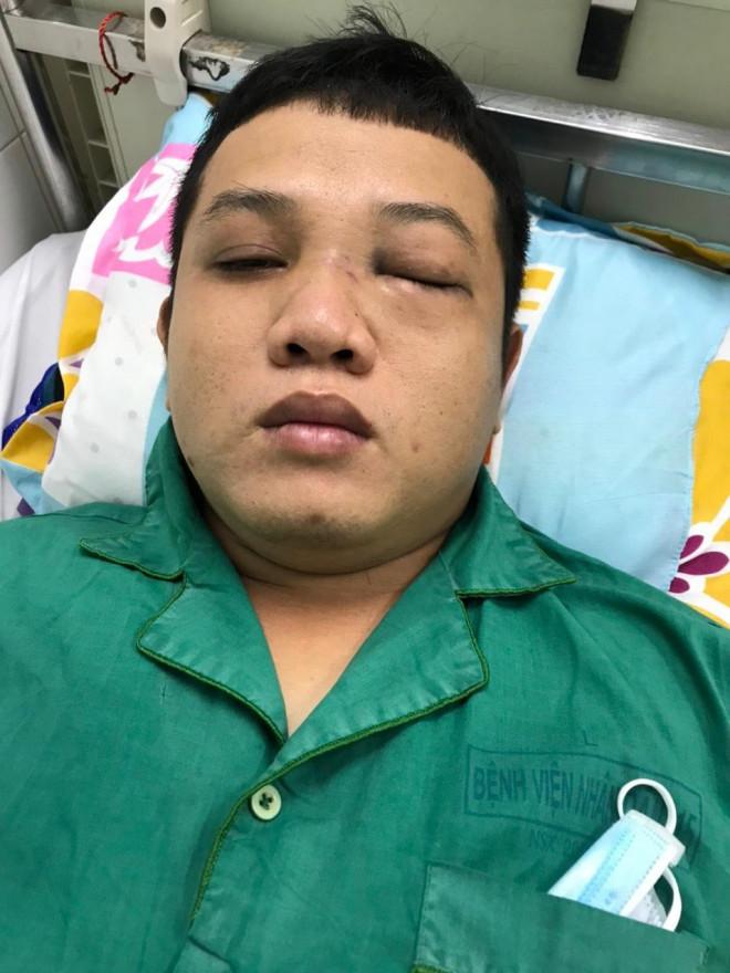 Chào hỏi trong quán nhậu, thanh niên bị 2 cán bộ CSGT đánh nhập viện - 1