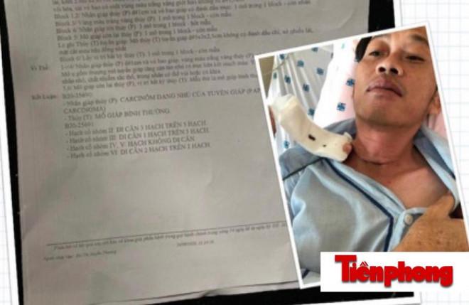 Hoài Linh tiết lộ phải phẫu thuật K tuyến giáp cách đây vài tháng - 1