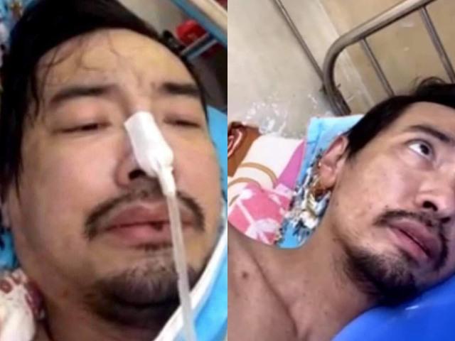 Ca sĩ Việt Quang bị viêm phổi nặng, không đủ kinh phí cứu chữa - 1