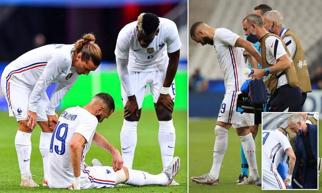 ĐT Pháp lo sốt vó vì Benzema chấn thương, nguy cơ lỡ EURO 2021? - 1