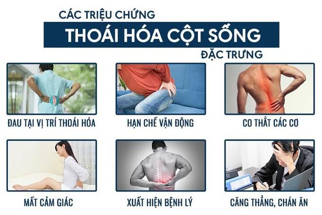 Tại sao người trẻ bị đau vai gáy, đau lưng liên tục? Chuyên gia tiết lộ thủ phạm không ngờ trên VTV3! - 1