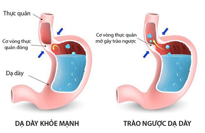 Bất lực vì trào ngược dạ dày, đau dạ dày đeo bám hành hạ, may thay tìm được cách này - 2