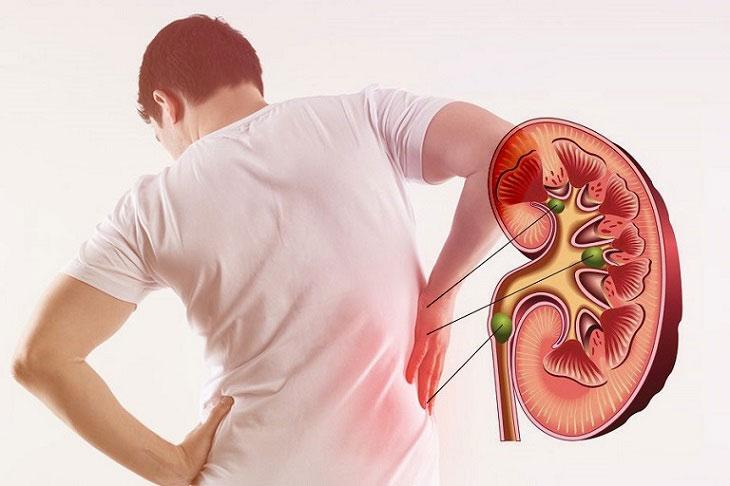 Phát hiện nguy cơ suy thận qua những dấu hiệu bất thường khi đi tiểu - 1
