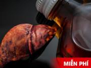 Click ngay để nhận miễn phí liệu trình giải độc gan, hạ virus cho người bệnh gan