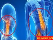 Tin tức sức khỏe - Lý do Vương Hoạt được gọi là sản phẩm hữu ích cho người bị đau nhức cột sống