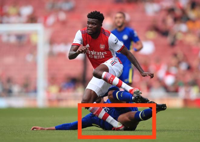 SAO Arsenal đau nặng như Maguire dễ nghỉ 6 tuần: Mourinho bỗng dưng bị thiệt - 1