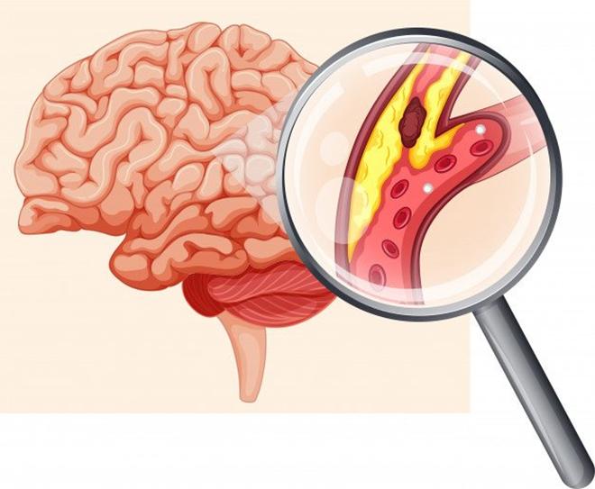 Cục máu đông - Tác nhân hàng đầu gây đột quỵ não - 1