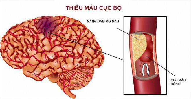 Cách xử trí các ca bệnh đột quỵ cấp liên quan tới COVID-19 - 1