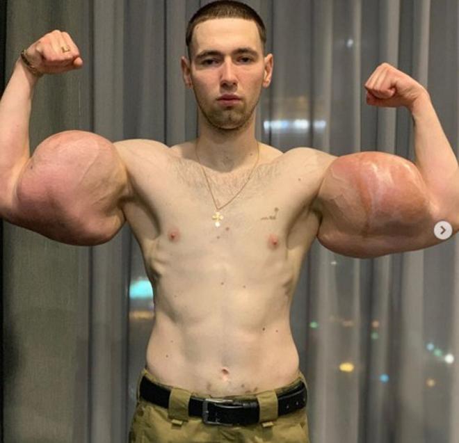 """Kỳ dị lực sĩ có bắp tay hơn 60cm to như đùi, đấu MMA bị đánh """"nổ cơ tay"""" - 1"""