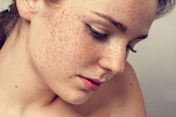 Những bộ phận trên cơ thể rất dễ bị ung thư da nhưng ít ai để ý - 1