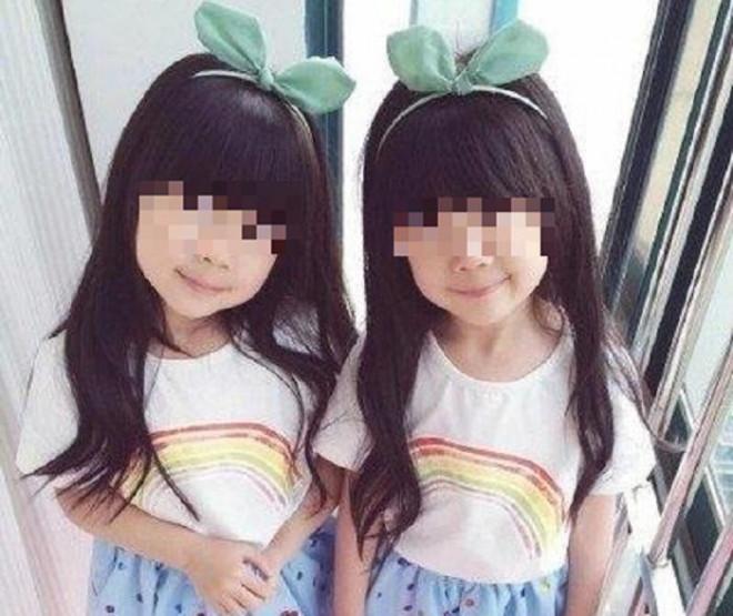 Hai con gái song sinh quá khác nhau, chồng bí mật làm xét nghiệm ADN, vạch trần bí mật của vợ - 1
