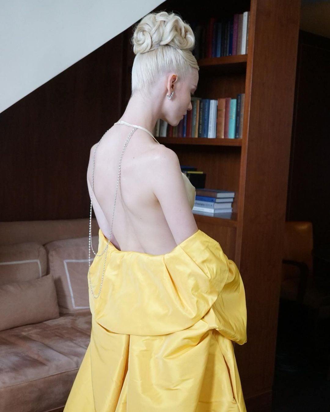 Anya Taylor-Joy hút mọi sự chú ý tại Emmy với váy trần lưng - 1