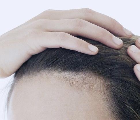 3 nguyên tắc để ngăn tóc rụng tả tơi như lá mùa thu - 1