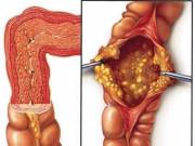 """4 dấu hiệu cảnh báo sớm """"Ung thư đại tràng"""" mà nhiều người dễ dàng bỏ qua"""