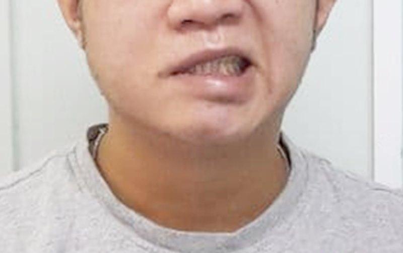 Người đàn ông ở Hà Nội bị méo miệng do thói quen hàng nghìn người mắc khi đi ngủ - 1