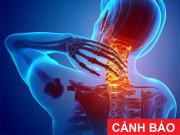 Tin tức sức khỏe - Tự nhiên đau sau cổ, cứng cổ, tê bại cánh tay là dấu hiệu của bệnh gì?